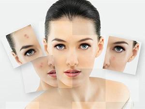 白醋洗脸的正确方法 掌握这些即可收到事半功倍的护肤效果