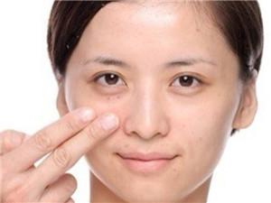 黑眼圈特别厉害是什么原因造成的 看下这些坏习惯你可有